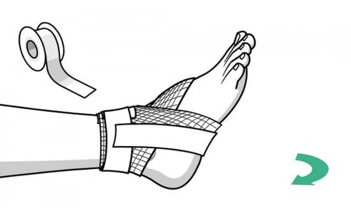 How to bandage a sprain